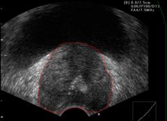 Visual aspect of healthy prostate and ADKP in Ultrasound images